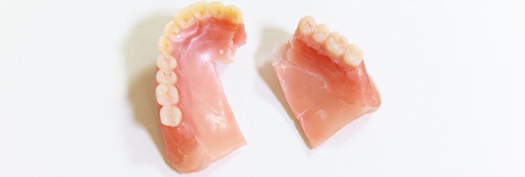 入れ歯が壊れたとき