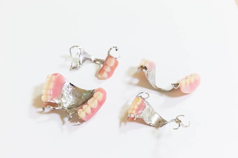 金属床義歯(総入れ歯)